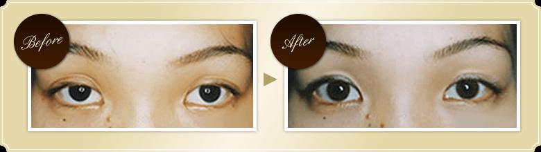 眼瞼下垂修正術の症例