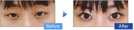 眼瞼下垂治療の施術写真2