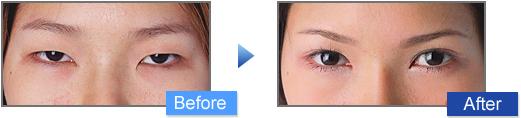 眼瞼下垂治療の施術写真3