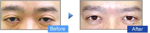 眼瞼下垂治療の施術写真4