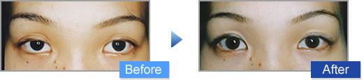眼瞼下垂治療の施術写真5