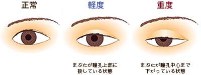 眼瞼下垂(がんけんかすい)とは