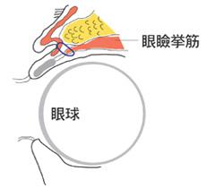 眼瞼下垂(がんけんかすい)の仕組み