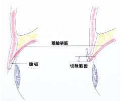 眼瞼下垂の施術方法1