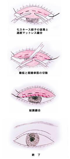 眼瞼下垂の施術方法2
